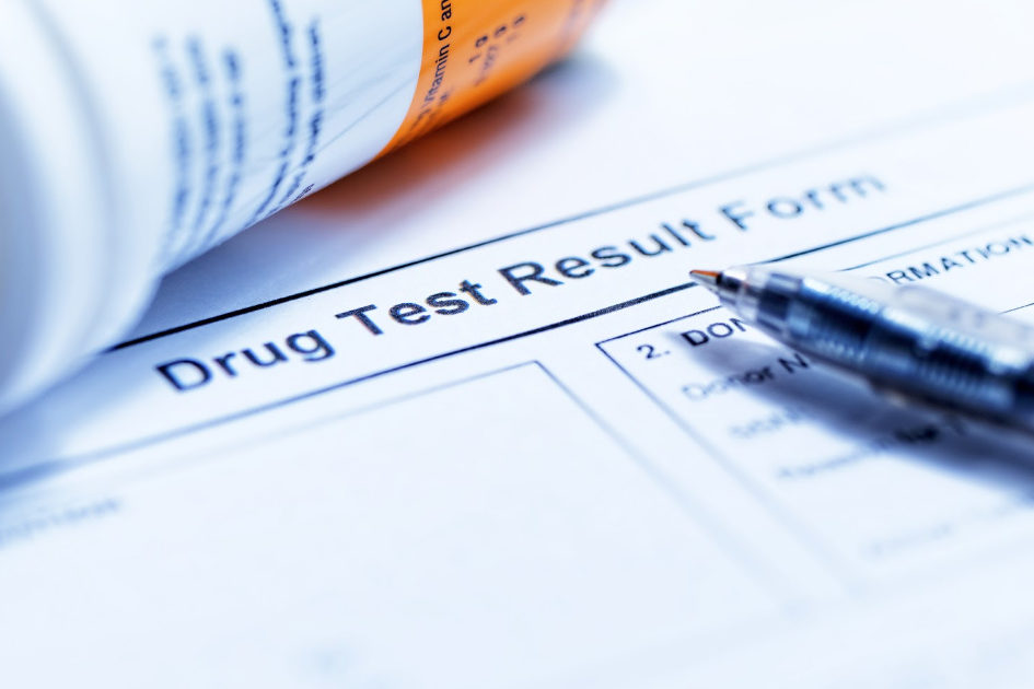 will cbd show up in a drug test